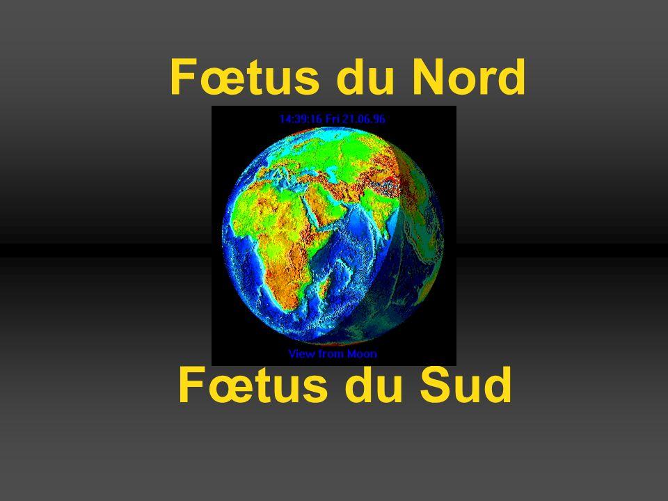 Fœtus du Sud Fœtus du Nord