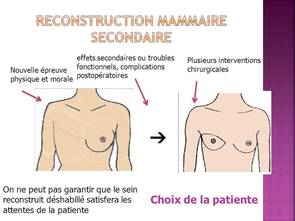 Nouvelle épreuve physique et morale Plusieurs interventions chirurgicales On ne peut pas garantir que le sein reconstruit déshabillé satisfera les att