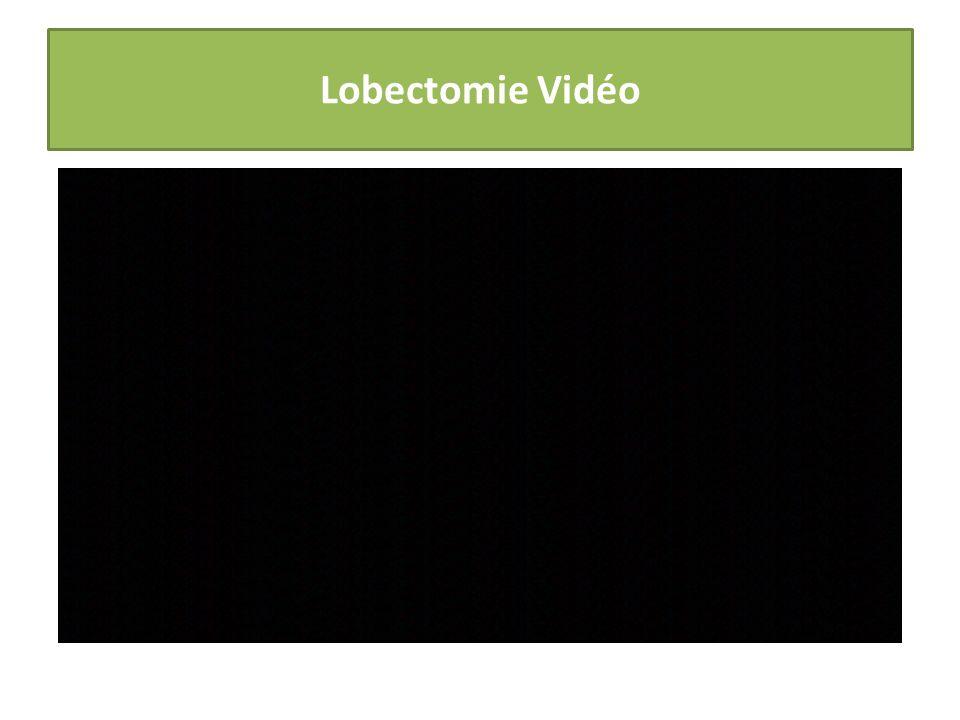 Lobectomie Vidéo