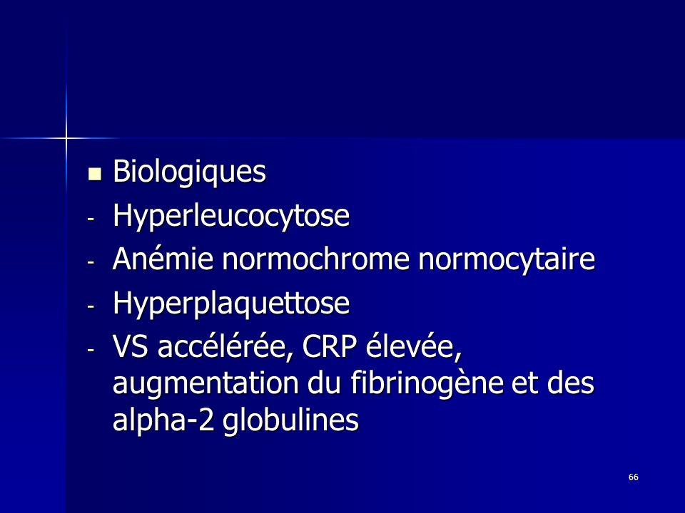 66 Biologiques Biologiques - Hyperleucocytose - Anémie normochrome normocytaire - Hyperplaquettose - VS accélérée, CRP élevée, augmentation du fibrino