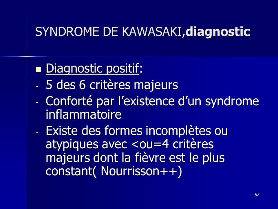 67 SYNDROME DE KAWASAKI,diagnostic Diagnostic positif: Diagnostic positif: - 5 des 6 critères majeurs - Conforté par lexistence dun syndrome inflammat