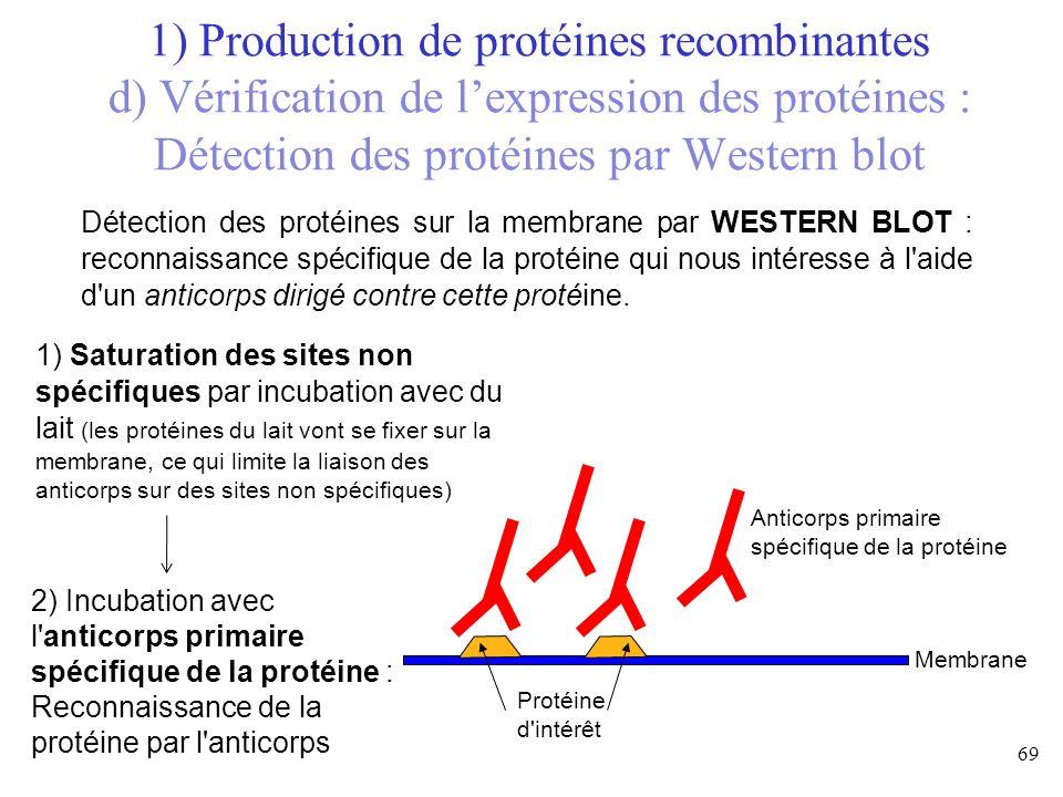 Détection des protéines sur la membrane par WESTERN BLOT : reconnaissance spécifique de la protéine qui nous intéresse à l'aide d'un anticorps dirigé