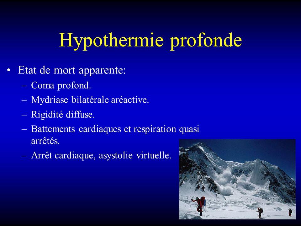 Hypothermie profonde Etat de mort apparente: –Coma profond. –Mydriase bilatérale aréactive. –Rigidité diffuse. –Battements cardiaques et respiration q