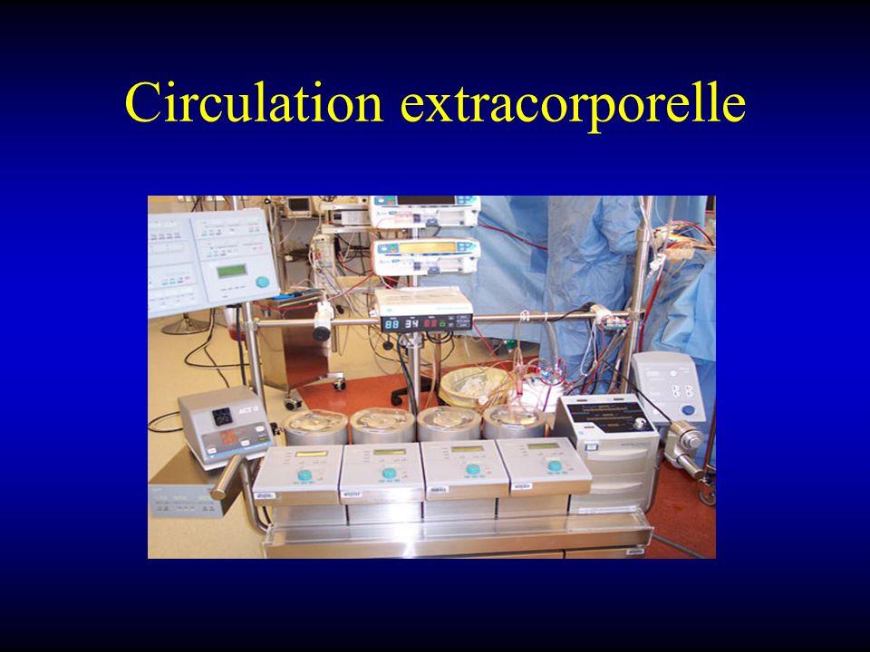 Circulation extracorporelle
