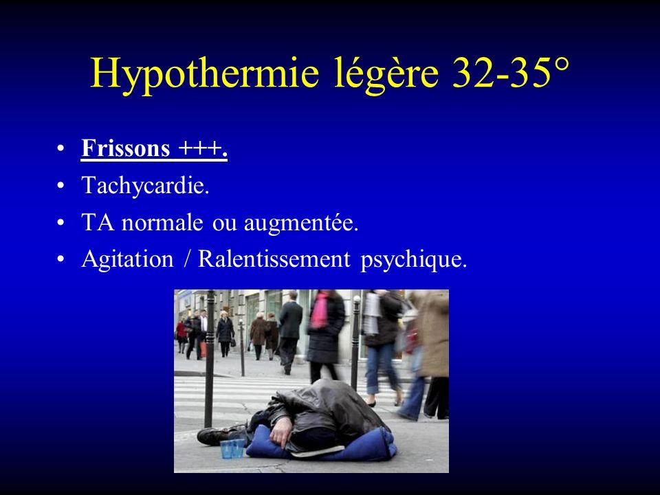 Hypothermie légère 32-35° Frissons +++. Tachycardie. TA normale ou augmentée. Agitation / Ralentissement psychique.
