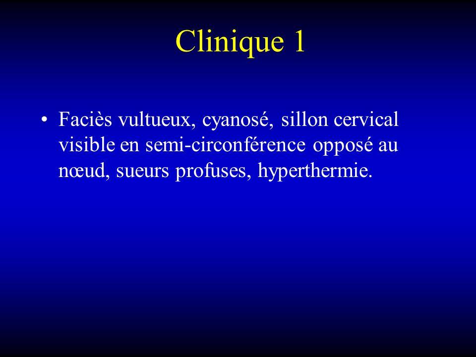 Clinique 1 Faciès vultueux, cyanosé, sillon cervical visible en semi-circonférence opposé au nœud, sueurs profuses, hyperthermie.