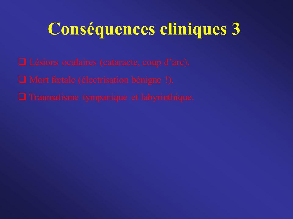 Conséquences cliniques 3 Lésions oculaires (cataracte, coup darc). Mort fœtale (électrisation bénigne !). Traumatisme tympanique et labyrinthique.