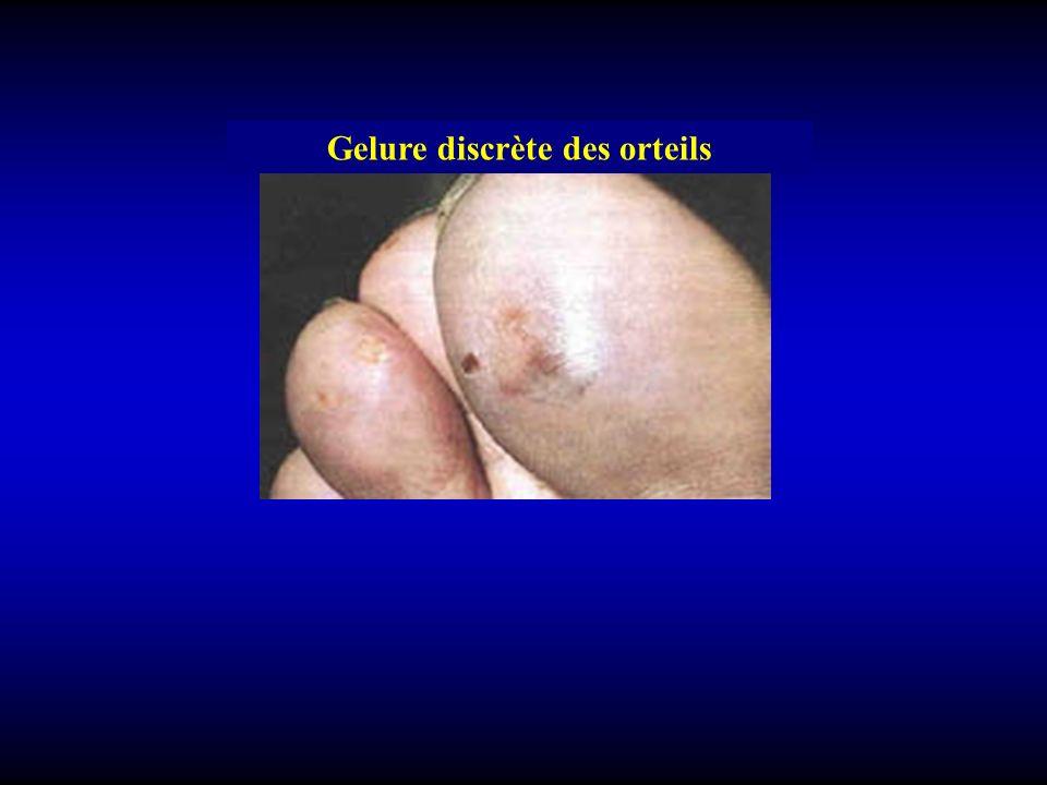 Classification 2 Gelures superficielles: 1 er degré: –guérison rapide (3-4 jours) –sans séquelle 2 éme degré superficiel: –Guérison 10-15 jours.