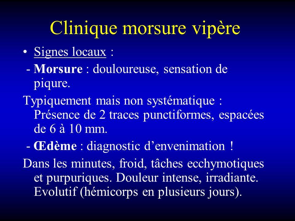 Clinique morsure vipère Signes locaux : - Morsure : douloureuse, sensation de piqure. Typiquement mais non systématique : Présence de 2 traces punctif
