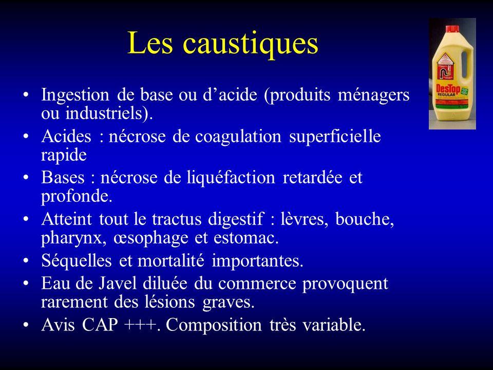 Les caustiques Ingestion de base ou dacide (produits ménagers ou industriels). Acides : nécrose de coagulation superficielle rapide Bases : nécrose de