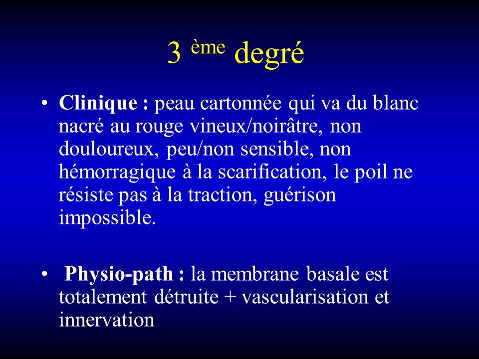 3 ème degré Clinique : peau cartonnée qui va du blanc nacré au rouge vineux/noirâtre, non douloureux, peu/non sensible, non hémorragique à la scarific