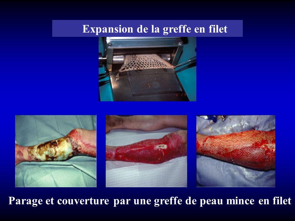Expansion de la greffe en filet Parage et couverture par une greffe de peau mince en filet