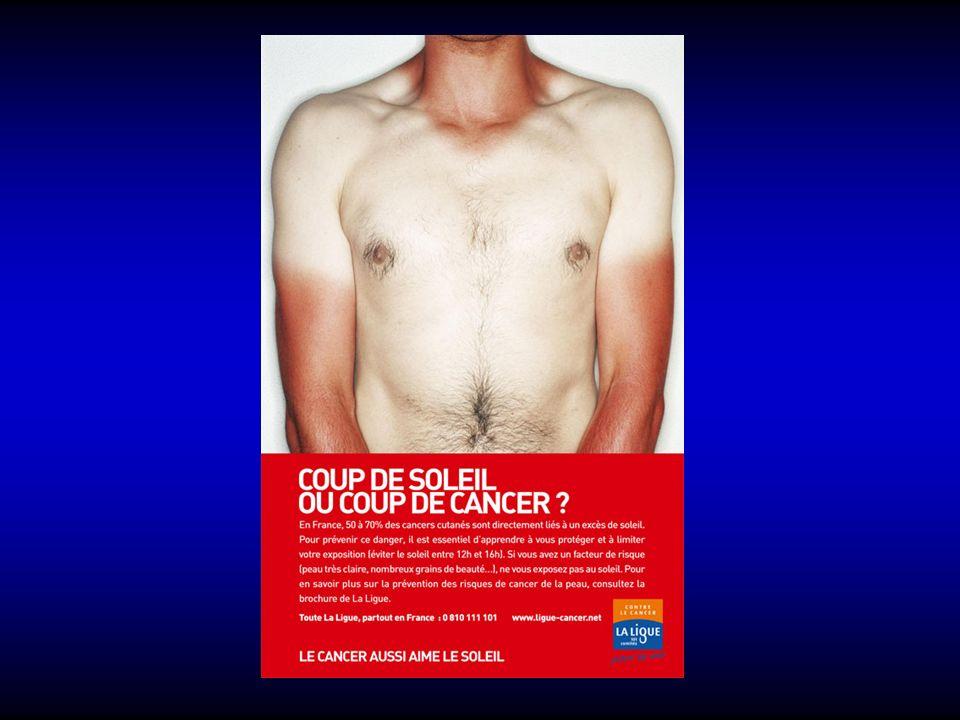 Brûlures du 2 ème degré: superficiel Clinique : phlyctènes volumineuses, peau sous- jacente rose et chaude, se décolore à la pression, très douloureux+++, hémorragique à la piqûre, guérison spontanée en 15 à 21 jours.