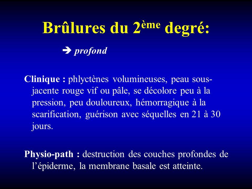 Brûlures du 2 ème degré: profond Clinique : phlyctènes volumineuses, peau sous- jacente rouge vif ou pâle, se décolore peu à la pression, peu douloure