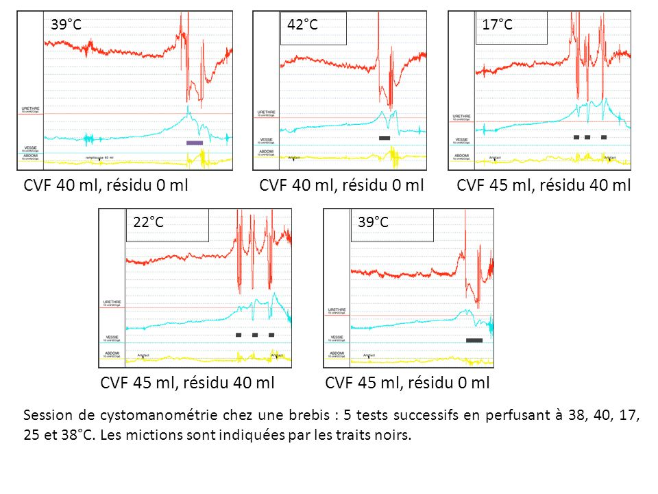 42°C 39°C 22°C 17°C Session de cystomanométrie chez une brebis : 5 tests successifs en perfusant à 38, 40, 17, 25 et 38°C. Les mictions sont indiquées