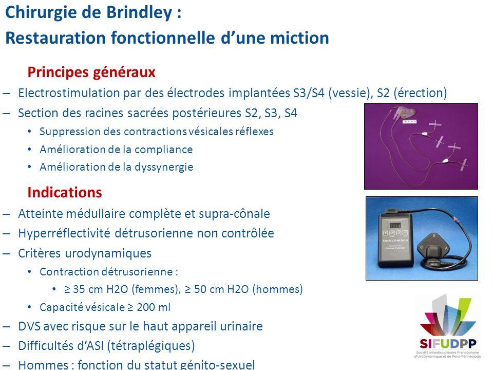 Principes généraux – Electrostimulation par des électrodes implantées S3/S4 (vessie), S2 (érection) – Section des racines sacrées postérieures S2, S3,