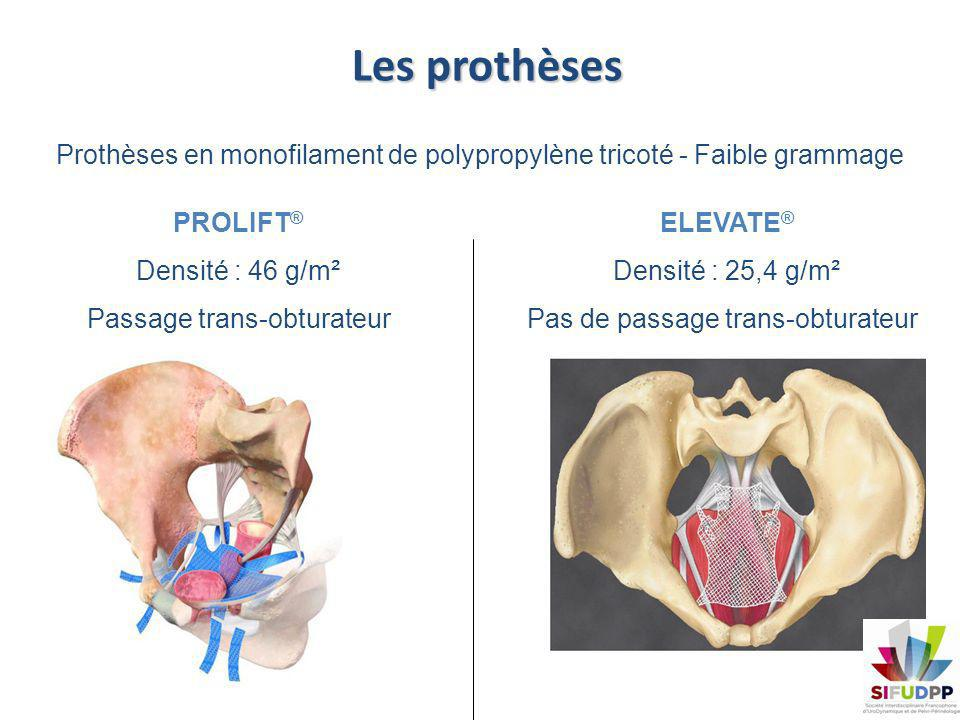 Les prothèses Prothèses en monofilament de polypropylène tricoté - Faible grammage PROLIFT ® Densité : 46 g/m² Passage trans-obturateur ELEVATE ® Dens