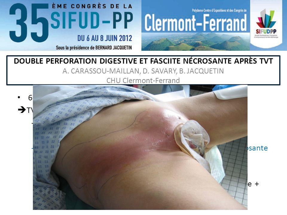 DOUBLE PERFORATION DIGESTIVE ET FASCIITE NÉCROSANTE APRÈS TVT A. CARASSOU-MAILLAN, D. SAVARY, B. JACQUETIN CHU Clermont-Ferrand 60 ans, non obèse, G2P