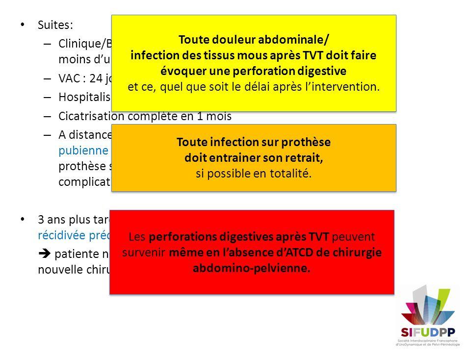 Suites: – Clinique/Bio: amélioration en moins dune semaine – VAC : 24 jours – Hospitalisation : 29 jours – Cicatrisation complète en 1 mois – A distan
