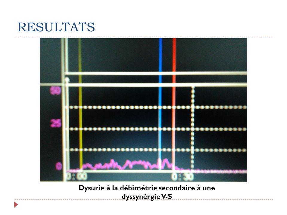 RESULTATS Dysurie à la débimétrie secondaire à une dyssynérgie V-S