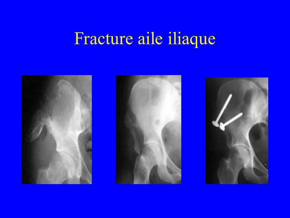 Fracture aile iliaque