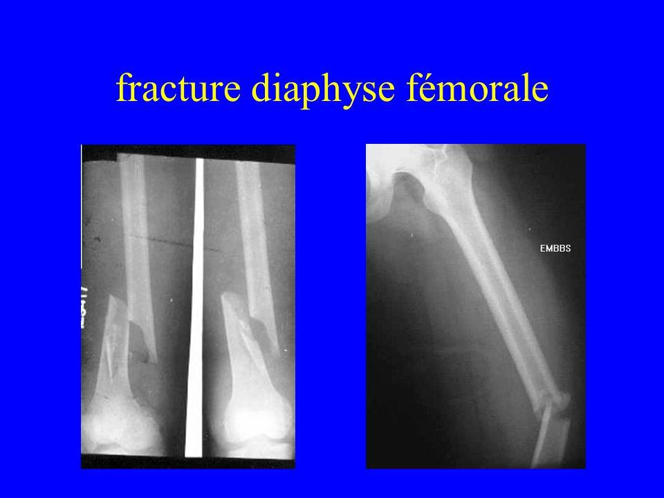 fracture diaphyse fémorale