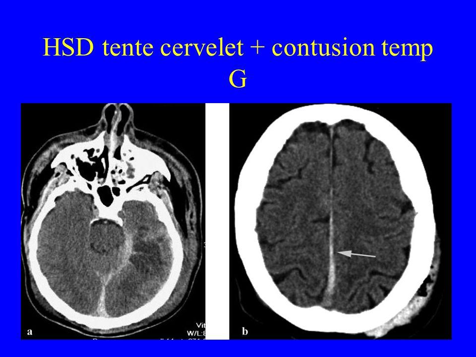 HSD tente cervelet + contusion temp G