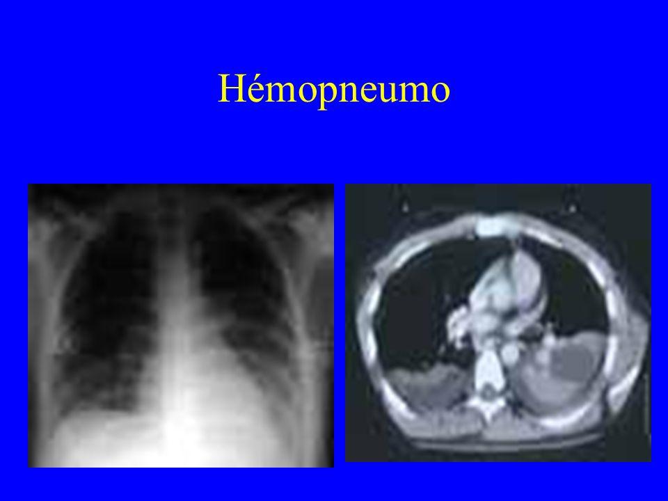 Hémopneumo