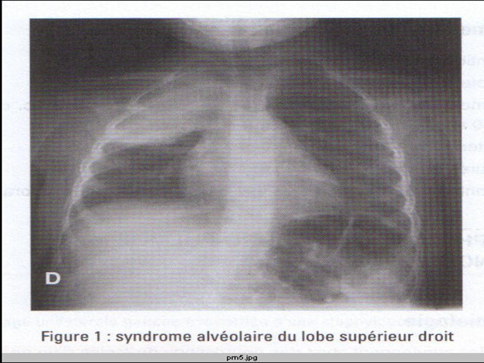 b.Formes atypiques - Formes pseudo-méningées -Formes pseudo-appendiculaires -- Autres types -pneumopathies virales - Pneumopathies à germes atypiques donnent des tableaux rarement dyspnéisants