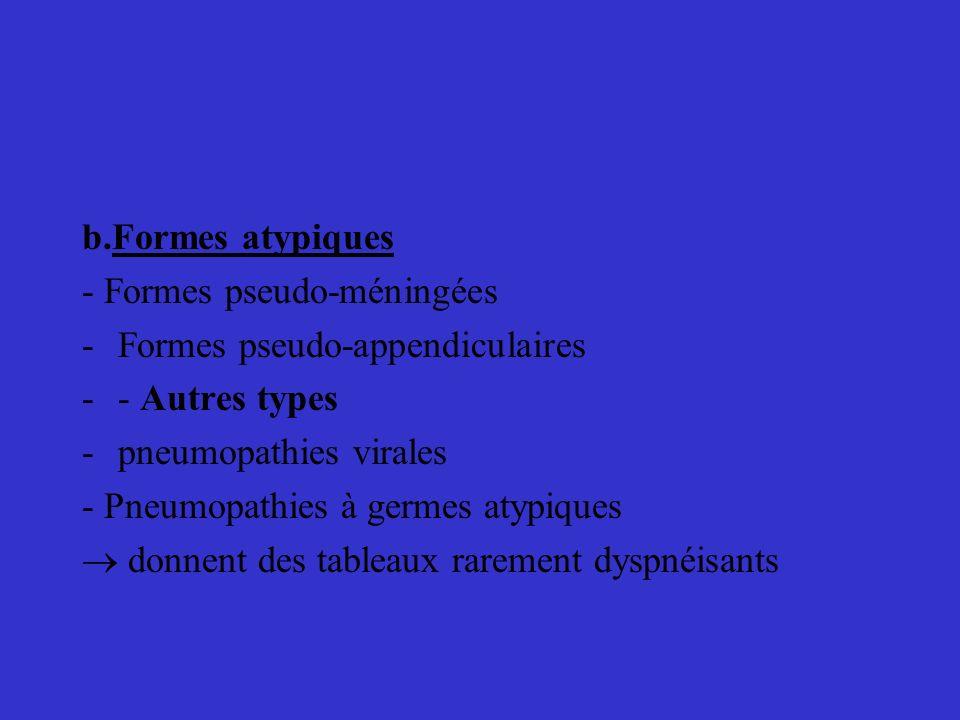 b.Formes atypiques - Formes pseudo-méningées -Formes pseudo-appendiculaires -- Autres types -pneumopathies virales - Pneumopathies à germes atypiques