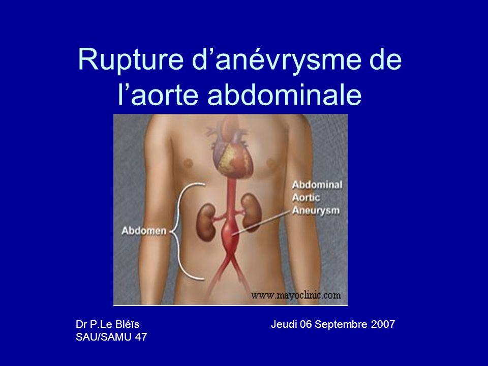 Rupture danévrysme de laorte abdominale Dr P.Le Bléïs Jeudi 06 Septembre 2007 SAU/SAMU 47