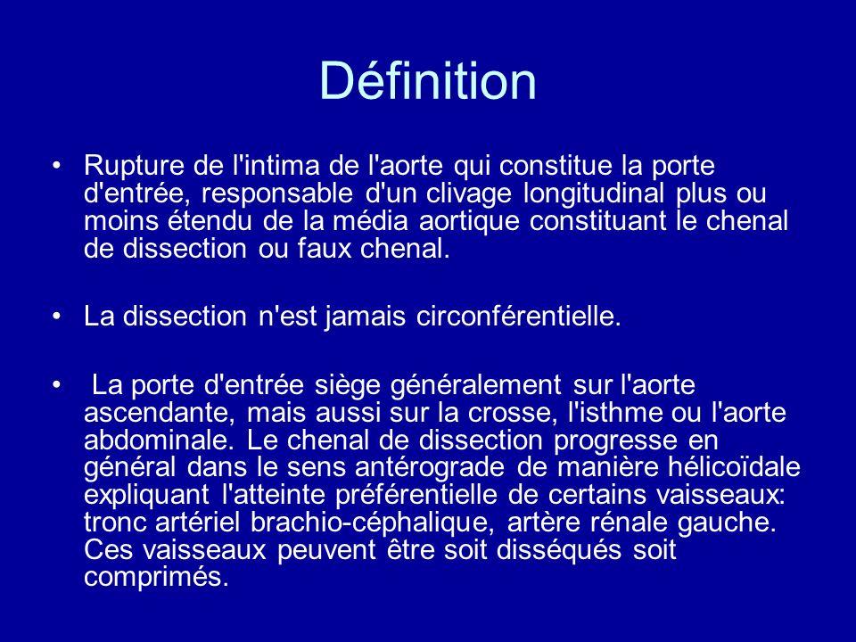 Définition Rupture de l'intima de l'aorte qui constitue la porte d'entrée, responsable d'un clivage longitudinal plus ou moins étendu de la média aort