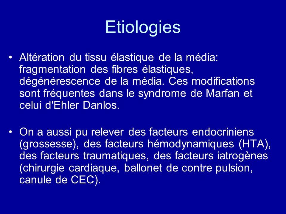 Etiologies Altération du tissu élastique de la média: fragmentation des fibres élastiques, dégénérescence de la média. Ces modifications sont fréquent