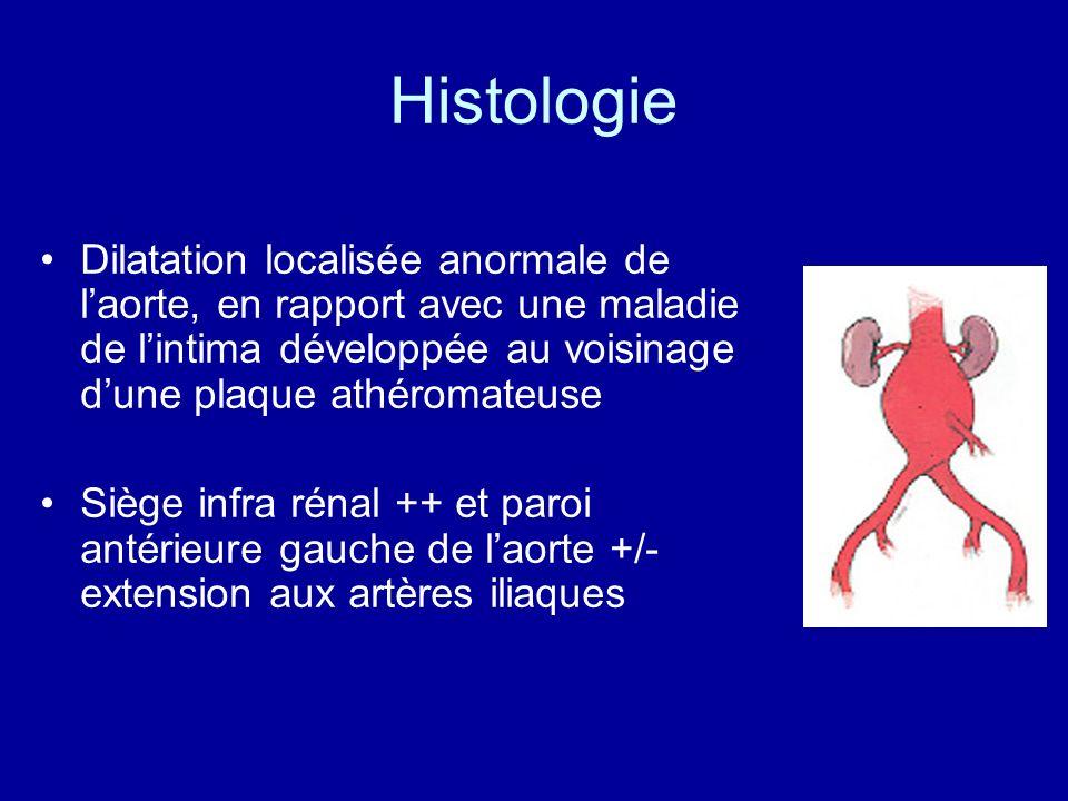 Histologie Dilatation localisée anormale de laorte, en rapport avec une maladie de lintima développée au voisinage dune plaque athéromateuse Siège inf