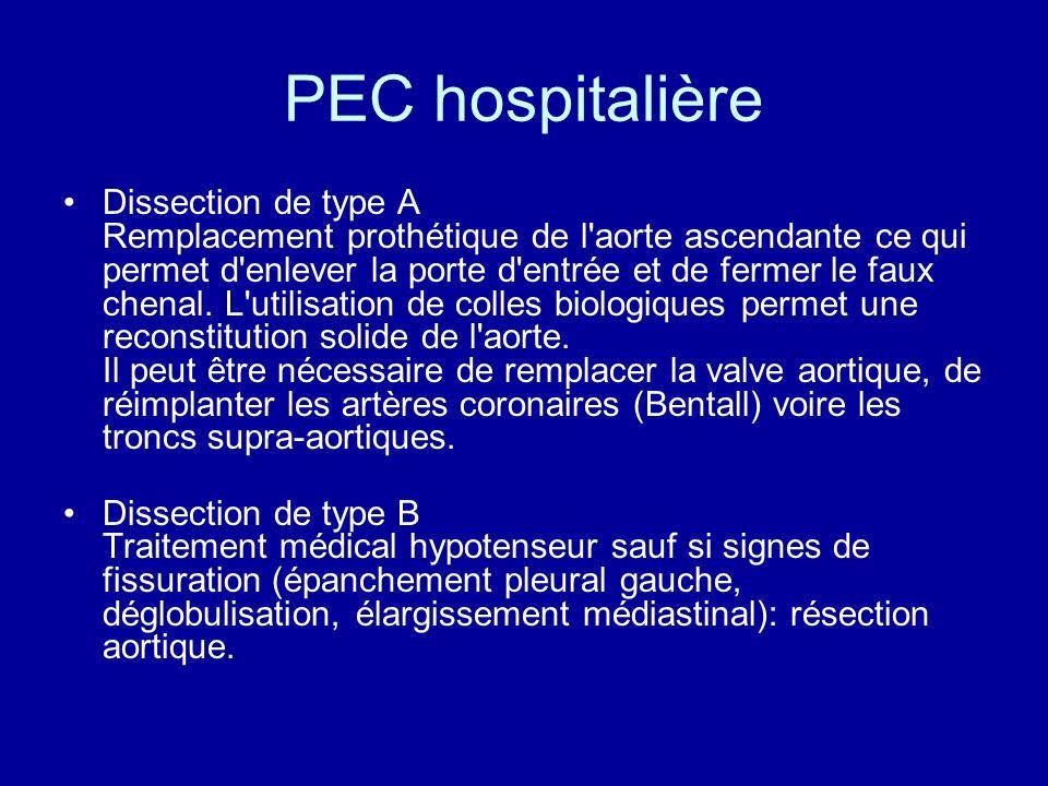 PEC hospitalière Dissection de type A Remplacement prothétique de l'aorte ascendante ce qui permet d'enlever la porte d'entrée et de fermer le faux ch