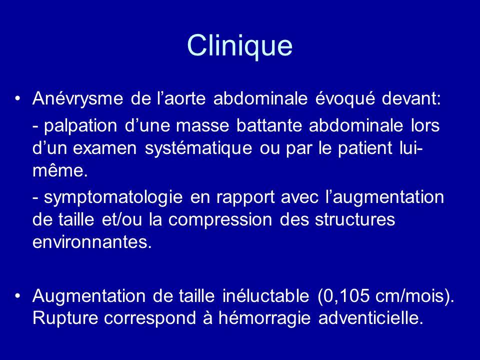 Clinique Anévrysme de laorte abdominale évoqué devant: - palpation dune masse battante abdominale lors dun examen systématique ou par le patient lui-