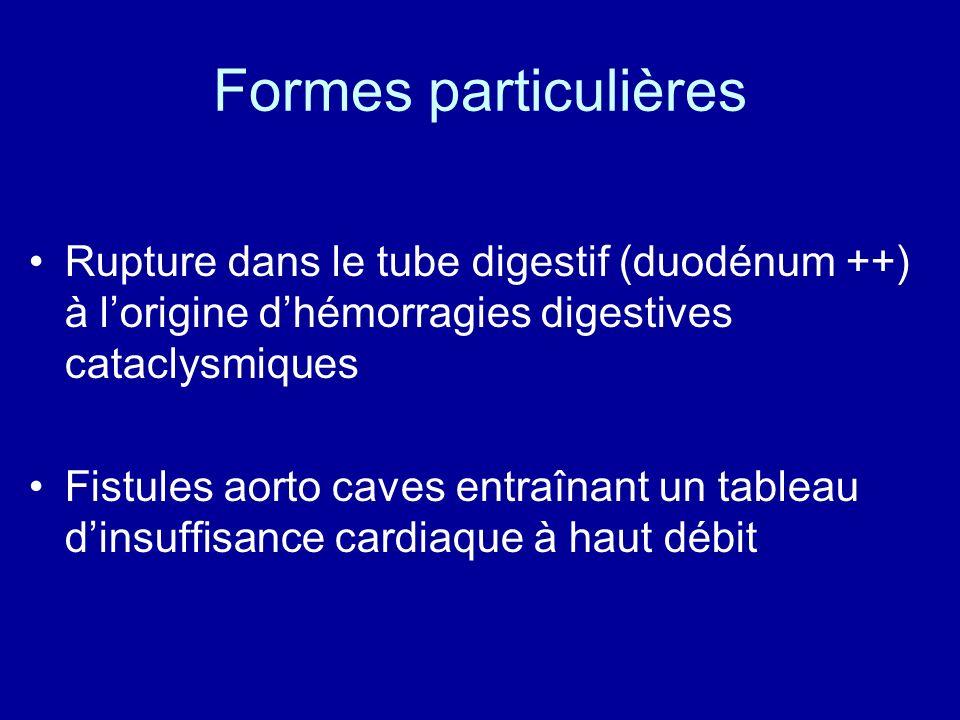 Formes particulières Rupture dans le tube digestif (duodénum ++) à lorigine dhémorragies digestives cataclysmiques Fistules aorto caves entraînant un