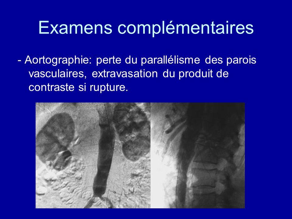 Examens complémentaires - Aortographie: perte du parallélisme des parois vasculaires, extravasation du produit de contraste si rupture.