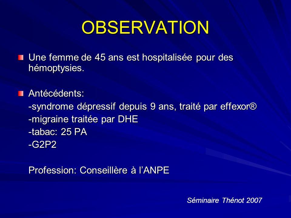OBSERVATION Une femme de 45 ans est hospitalisée pour des hémoptysies.