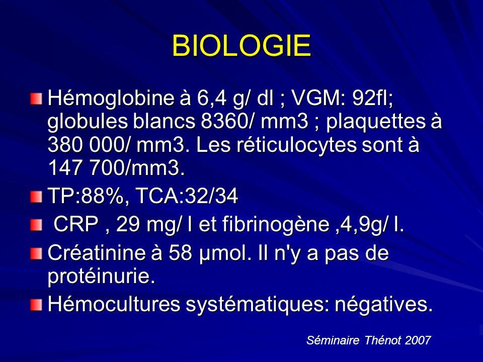 BIOLOGIE Hémoglobine à 6,4 g/ dl ; VGM: 92fl; globules blancs 8360/ mm3 ; plaquettes à 380 000/ mm3.