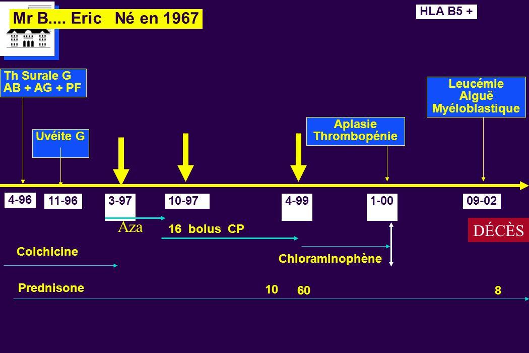 Mr B.... Eric Né en 1967 4-96 Th Surale G AB + AG + PF Uvéite G 11-96 Colchicine Prednisone 8 1-00 Aplasie Thrombopénie 60 HLA B5 + 3-97 Aza 09-02 Leu