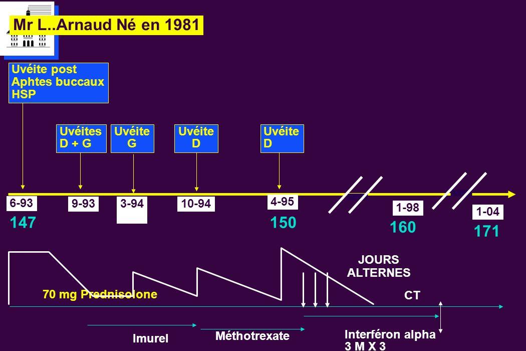 Mr L..Arnaud Né en 1981 6-93 9-93 Uvéites D + G Imurel 70 mg Prednisolone 3-94 Uvéite G Méthotrexate Interféron alpha 3 M X 3 147 Uvéite post Aphtes b