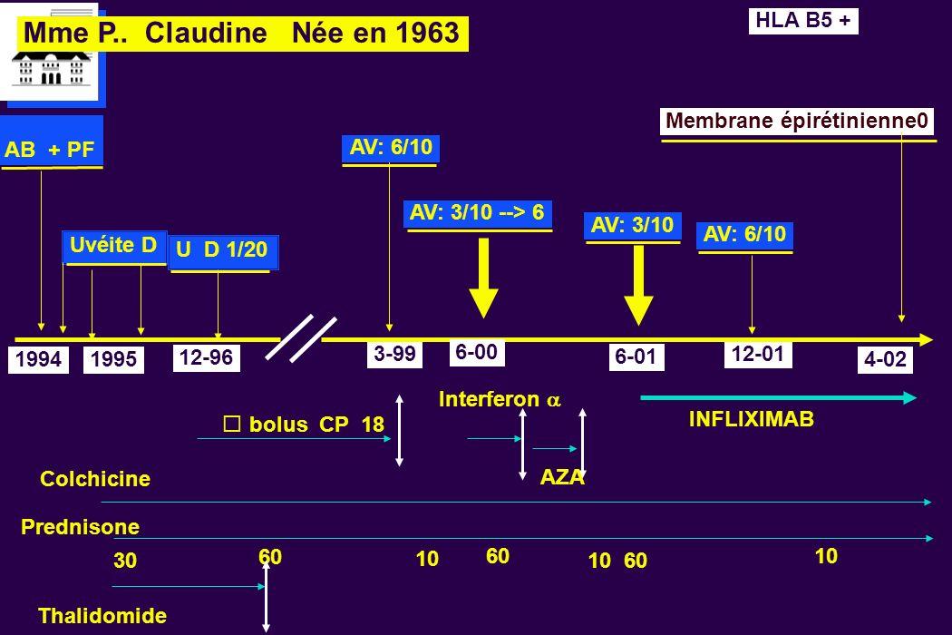 Mme P.. Claudine Née en 1963 Uvéite D 19941995 AB + PF 12-96 60 bolus CP 18 Colchicine AV: 6/10 6-00 3-99 Prednisone INFLIXIMAB 30 1060 HLA B5 + Thali