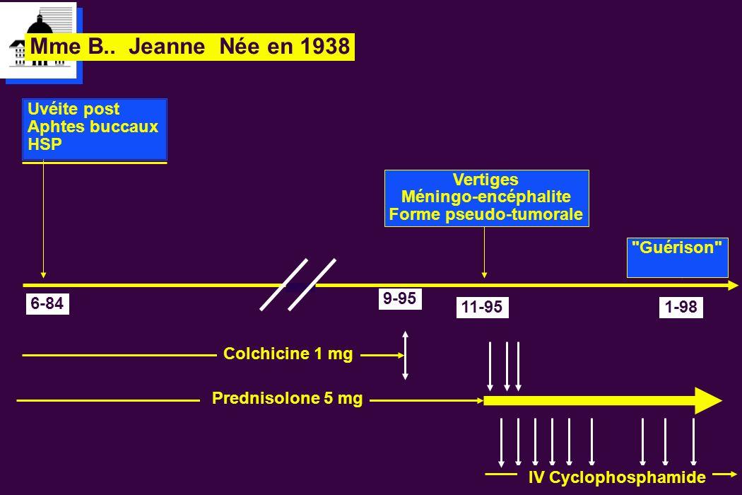 Mme B.. Jeanne Née en 1938 6-84 Uvéite post Aphtes buccaux HSP 9-95 Colchicine 1 mg Prednisolone 5 mg IV Cyclophosphamide 11-95 Vertiges Méningo-encép