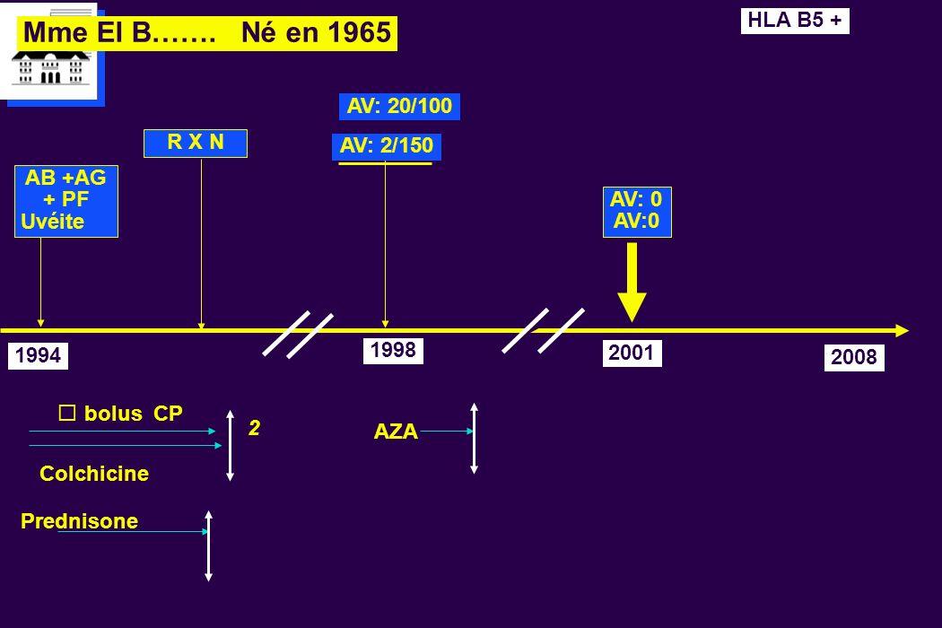 Mme El B……. Né en 1965 1994 R X N bolus CP Colchicine AV: 2/150 1998 Prednisone HLA B5 + AV: 20/100 AZA AV: 0 2001 2 AB +AG + PF Uvéite 2008