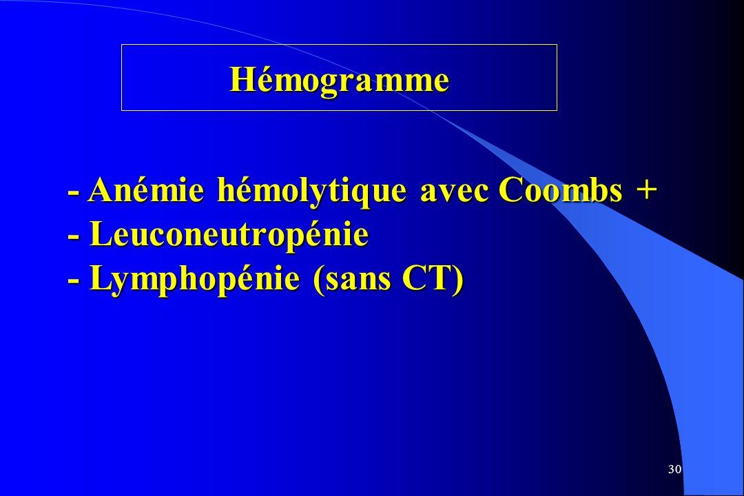 30 Hémogramme - Anémie hémolytique avec Coombs + - Leuconeutropénie - Lymphopénie (sans CT)