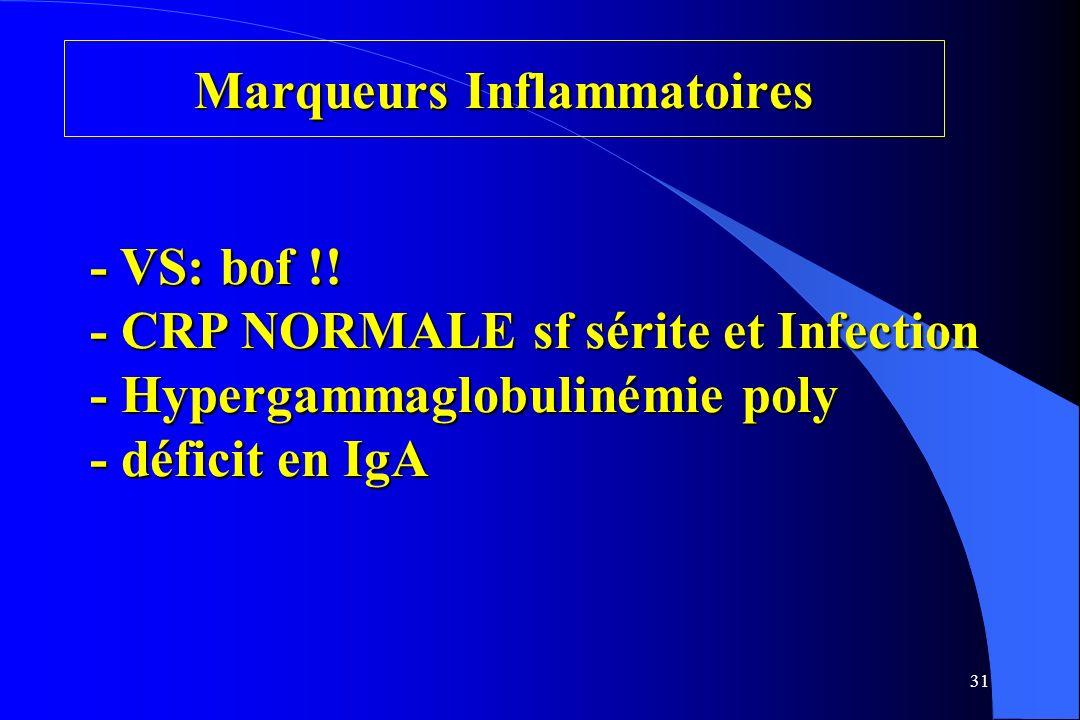 31 Marqueurs Inflammatoires - VS: bof !! - CRP NORMALE sf sérite et Infection - Hypergammaglobulinémie poly - déficit en IgA
