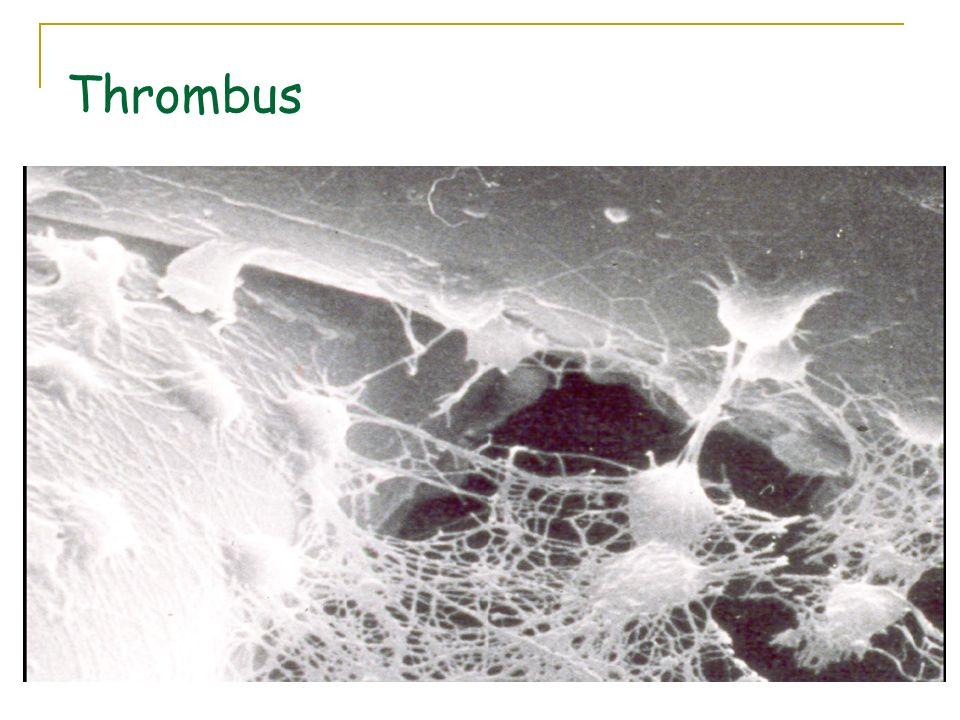 Thrombus