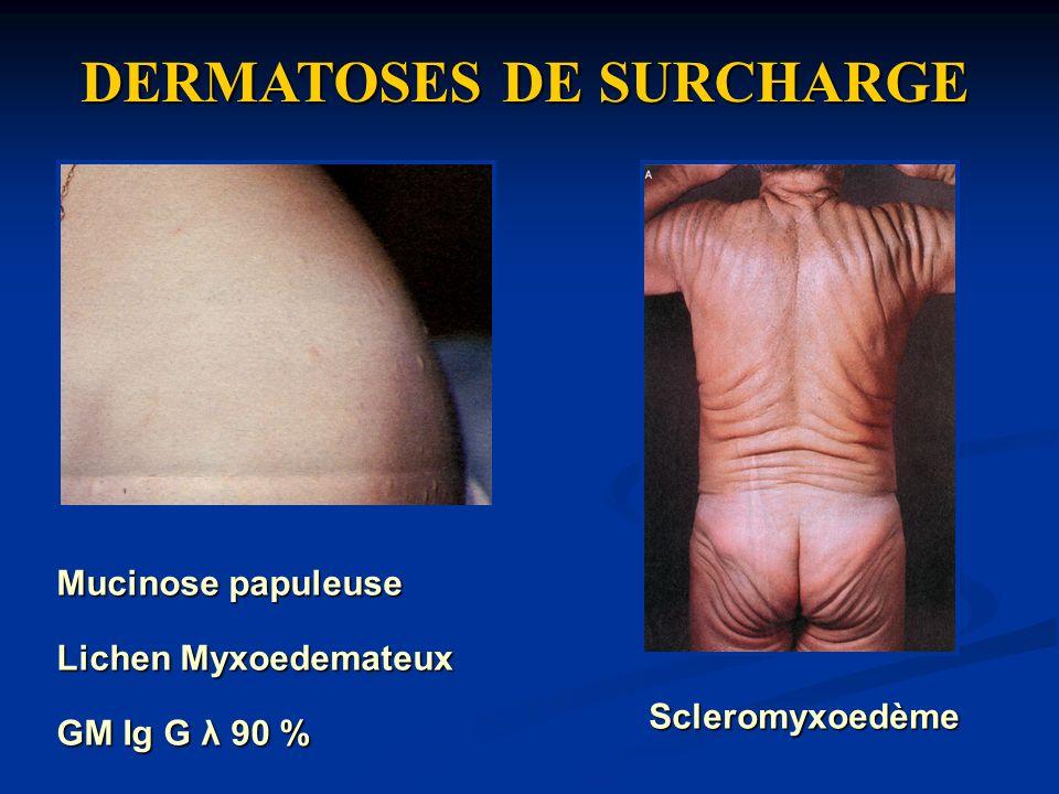 DERMATOSES DE SURCHARGE Lichen Myxoedemateux Scleromyxoedème GM Ig G λ 90 % Mucinose papuleuse