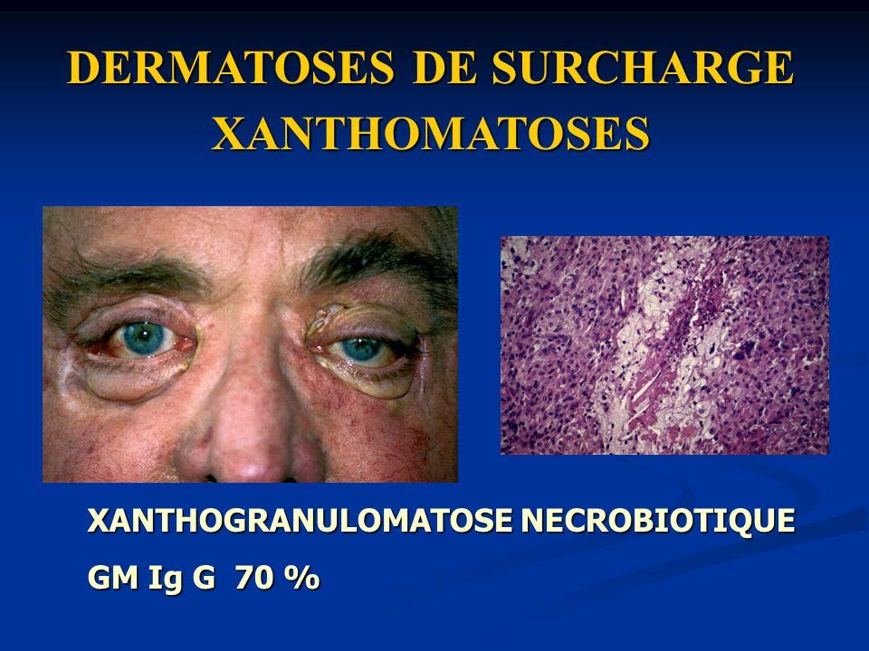 DERMATOSES DE SURCHARGE XANTHOMATOSES XANTHOGRANULOMATOSE NECROBIOTIQUE GM Ig G 70 %